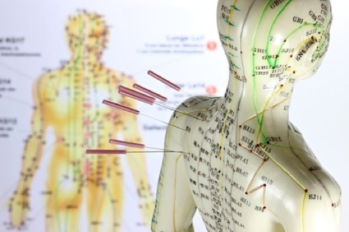 Akupunktur-Modell